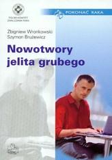Nowotwory jelita grubego