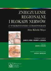 Znieczulenie regionalne i blokady nerwów z wykorzystaniem ultrasonografii
