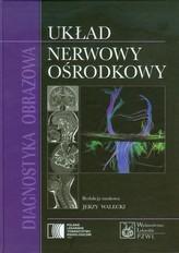 Diagnostyka obrazowa Układ nerwowy ośrodkowy
