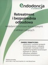 Retreatment i bezpośrednia odbudowa wkładami koronowo-korzeniowymi z włókien szklanych